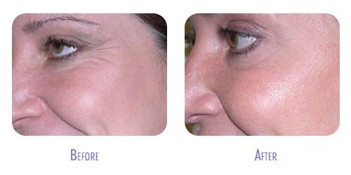 Botox Treatment at BodyLase