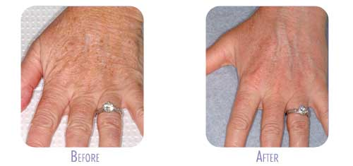 Fraxel Restore Laser Treatment at BodyLase