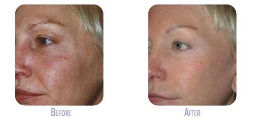 Fraxel Laser Treatment at BodyLase