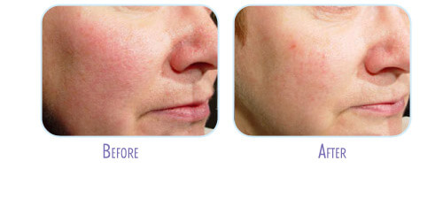 Laser Facial Treatment Before and After