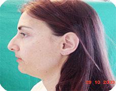 SmartLipo Chin-Neck Reduction Before