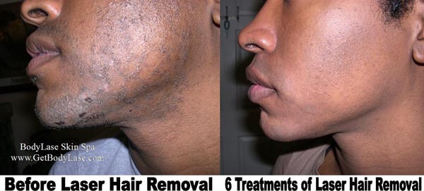 Laser Hair Removal Before and After for Men