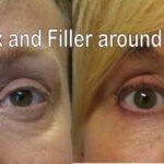 Botox and Wrinkler Filler around eye area