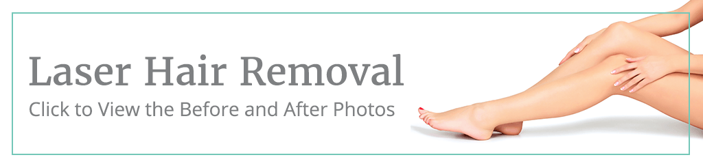 Laser Hair Removal before and after button