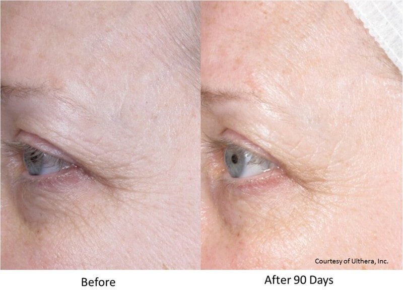 ultherapy eyes before and after