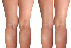 Bodylase laser vein therapy