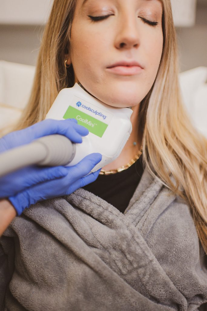 Patient receiving a CoolSculpting® treatment in the submental area