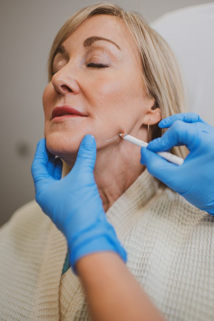 Woman getting filler treatments at BodyLase