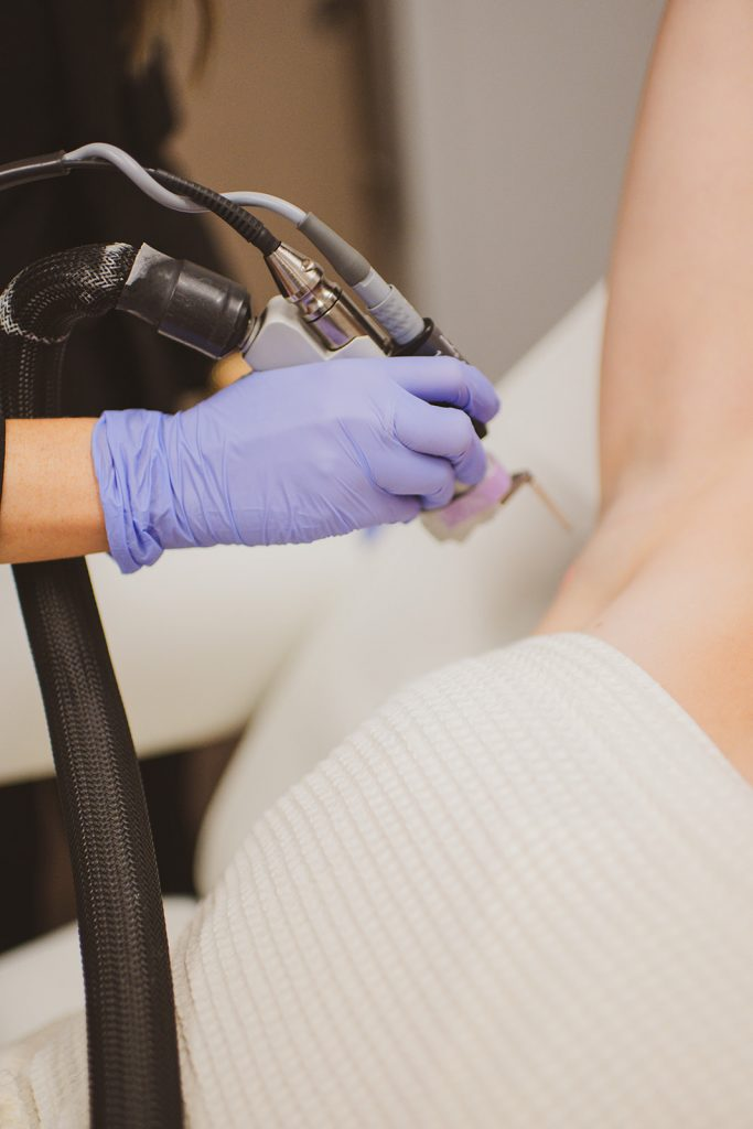 Female patient receiving laser hair removal treatments at BodyLase