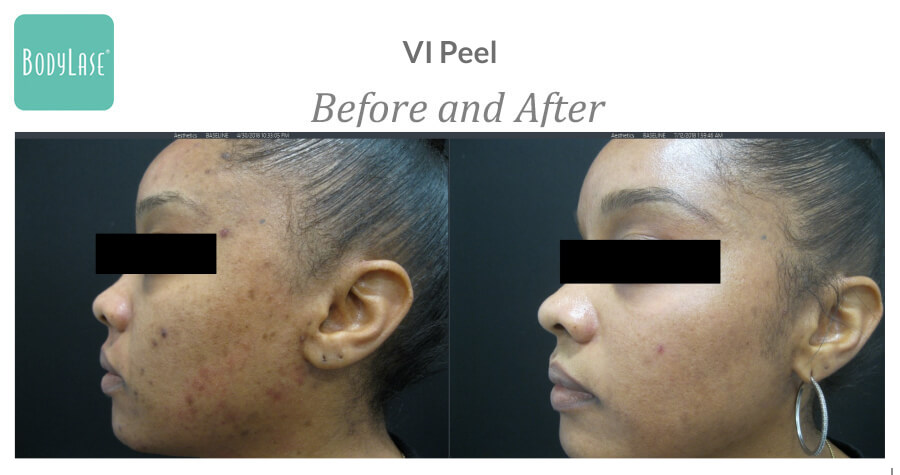 Before and after Vi peel results